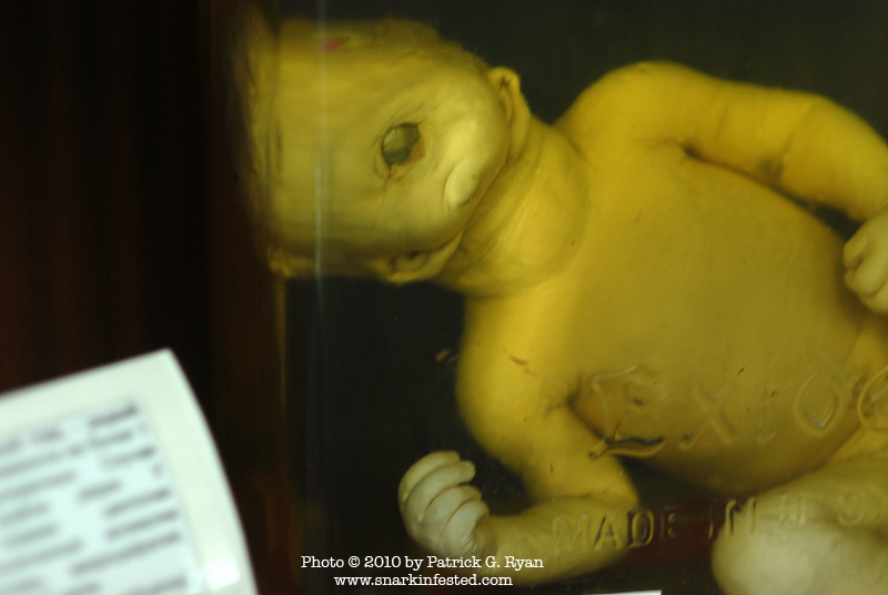 The card next to this baby identifies his birth defect is Cyclopia    Birth Defects From Radiation